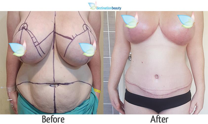 tummy tuck and breast reduction