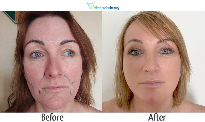 mid face & neck lift, nose reshaping in Thailand