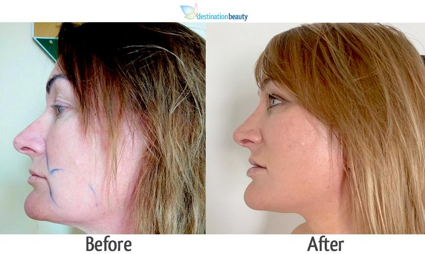 mid face & neck lift and nose reshaping Thailand-1