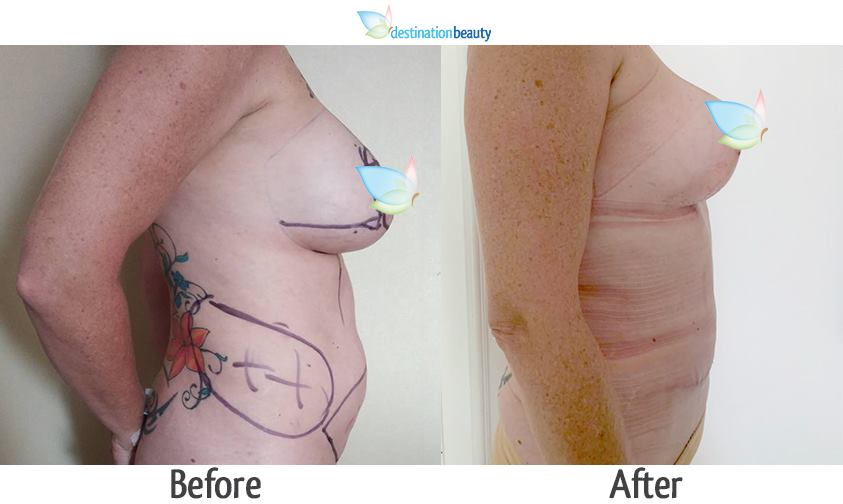 breast lift with small implants, liposuction, and tummy tuck thailand