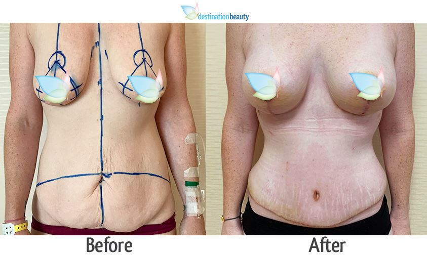 Before and after pictures of breast lift with small implants 225 cc and tummy tuck - 12 days post op