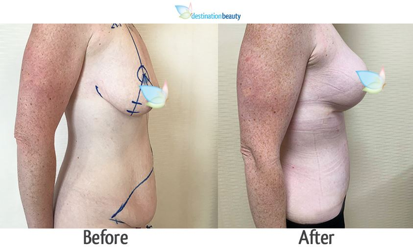 breast lift with small implants 225 cc and tummy tuck