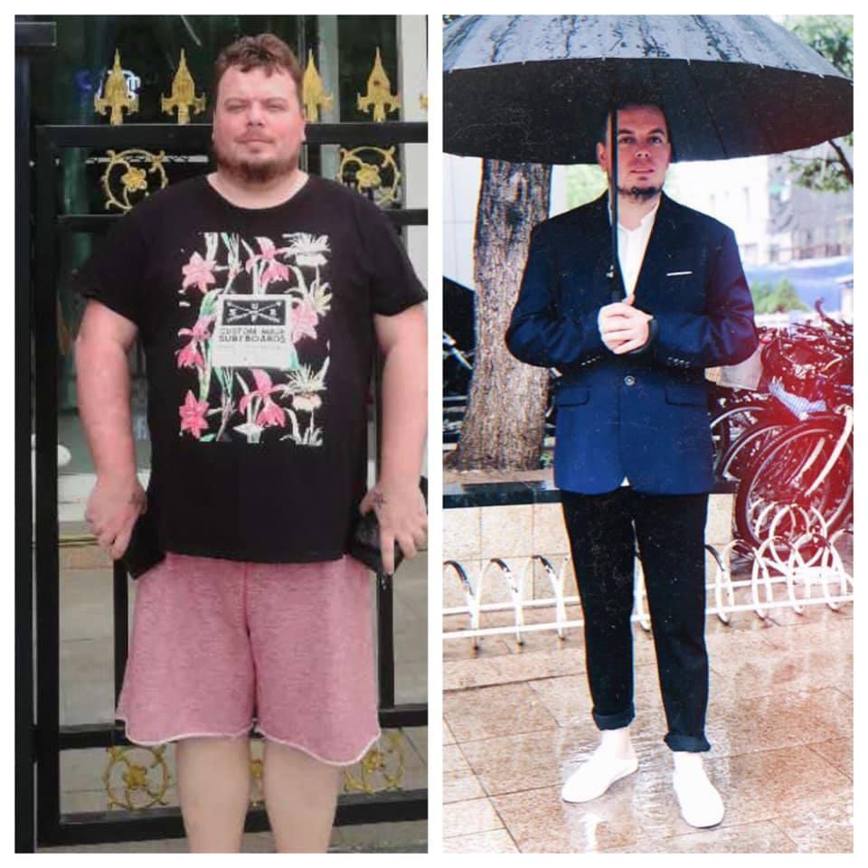 shaun 6 months post op gastric sleeve