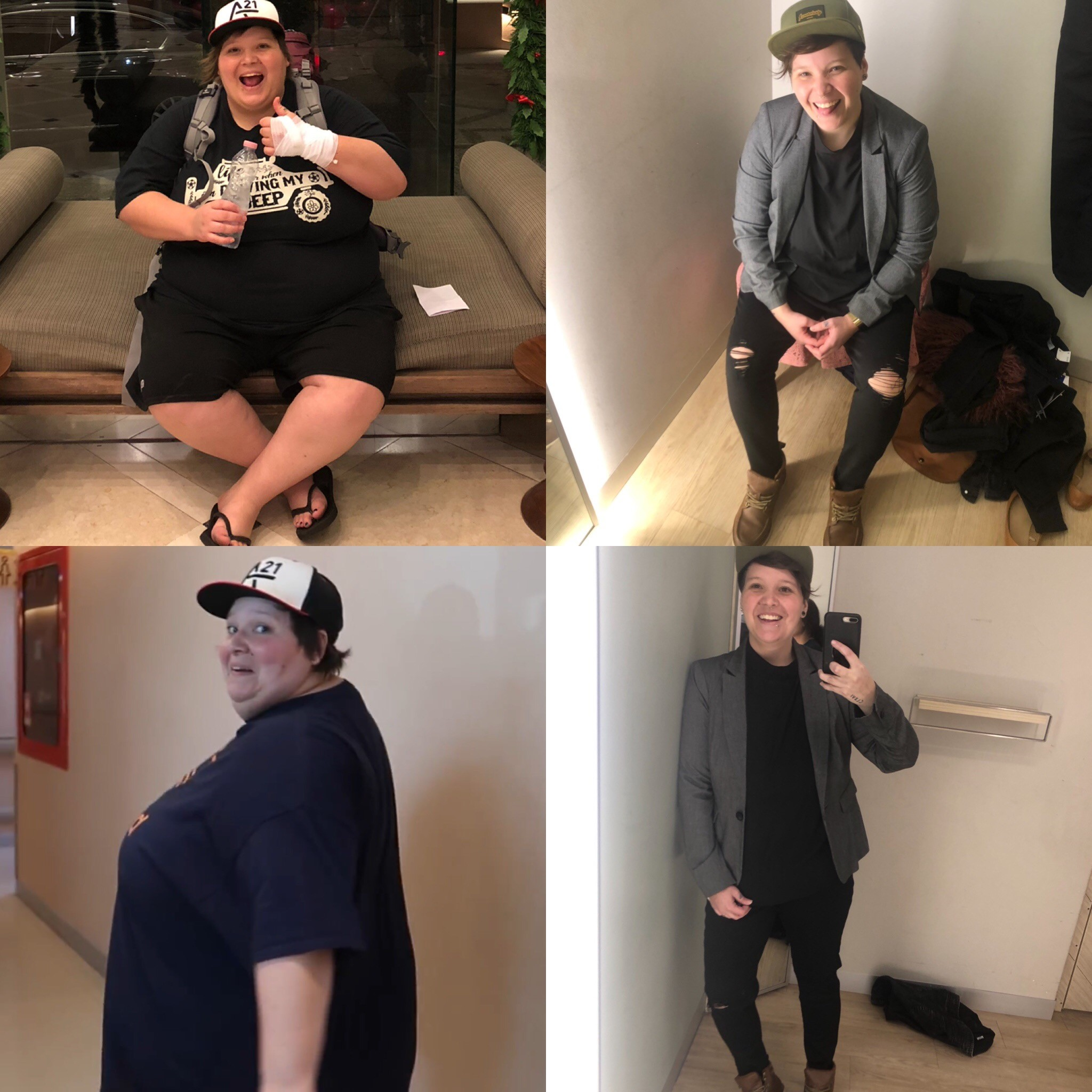emily 1 year post gastric sleeve