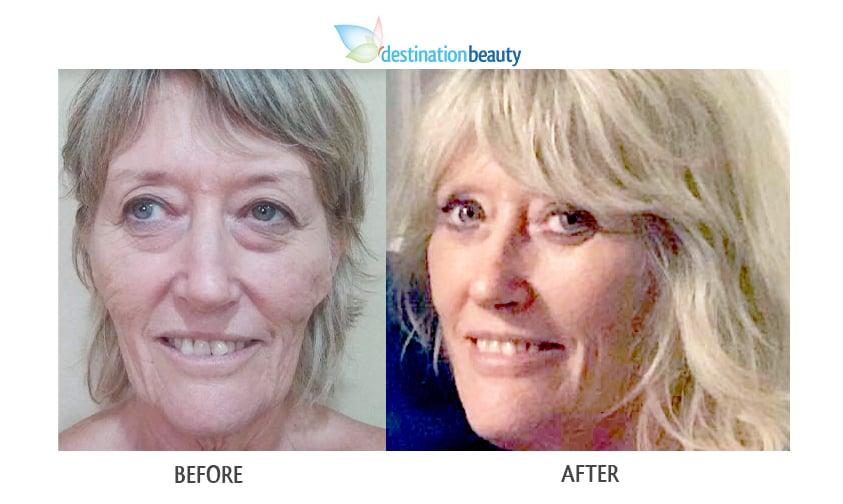 Jill face lift