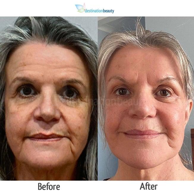 Angie _ Brown Lift  FL Botox
