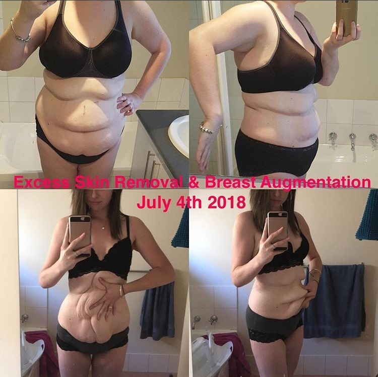 Ashley before and after gastric sleeve