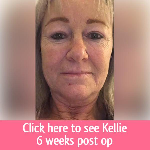 Click here Kellie
