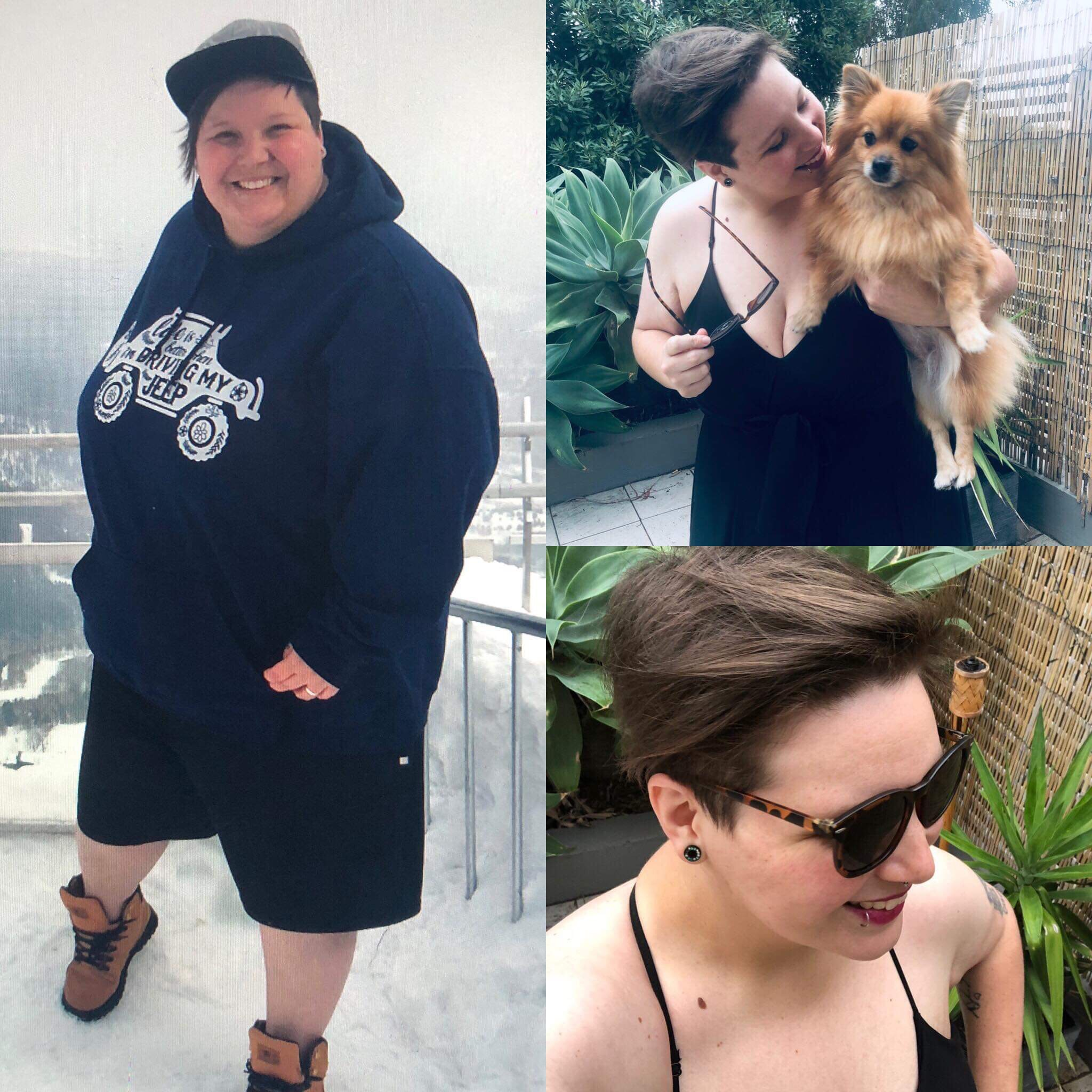 emily 1 year post op gastric sleeve
