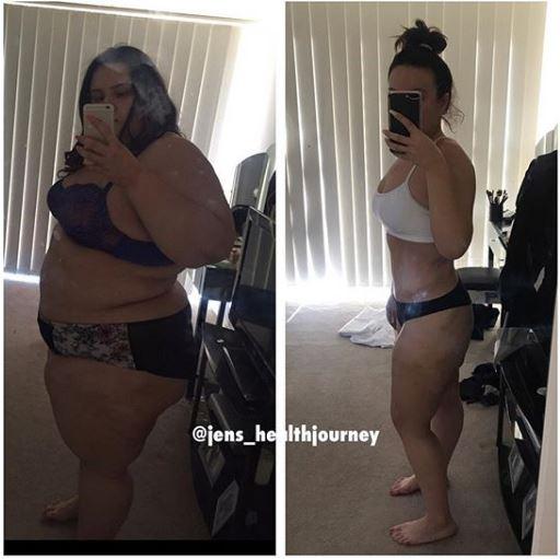 Jennifer_post-op-update-2-1.jpg