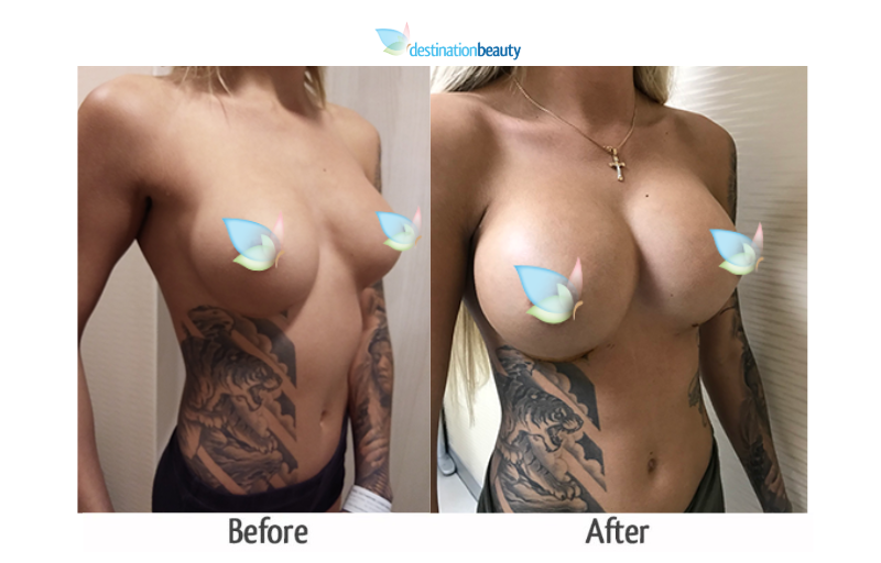 Katia 600 cc breast implant_dr_ring