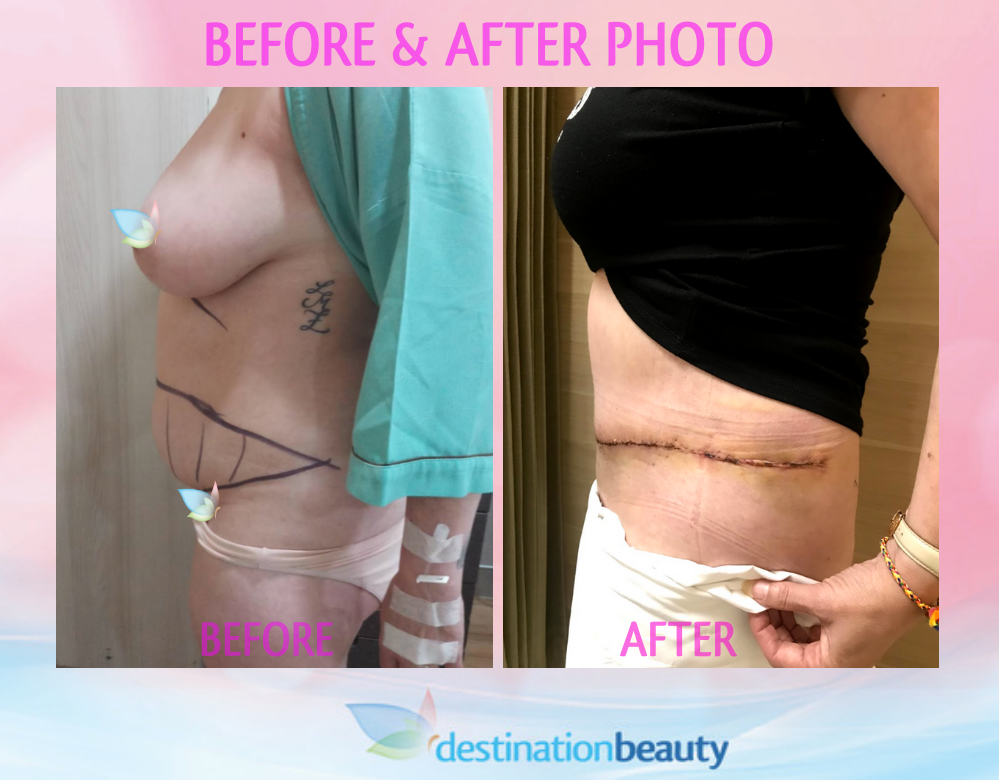 Maria's before and after extended tummy tuck thailand
