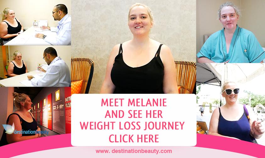 Melanie's gastric sleeve surgery bangkok