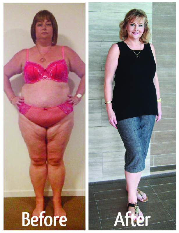 before and after gastric sleeve