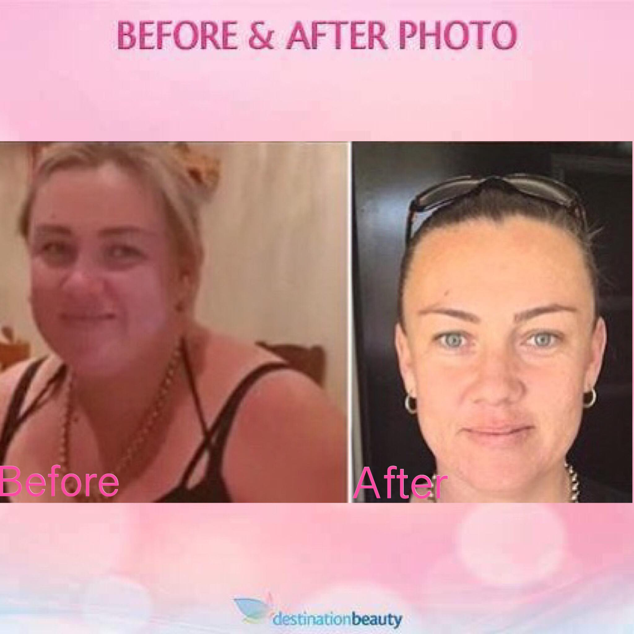 Paula before and after gastric sleeve surgery thailand