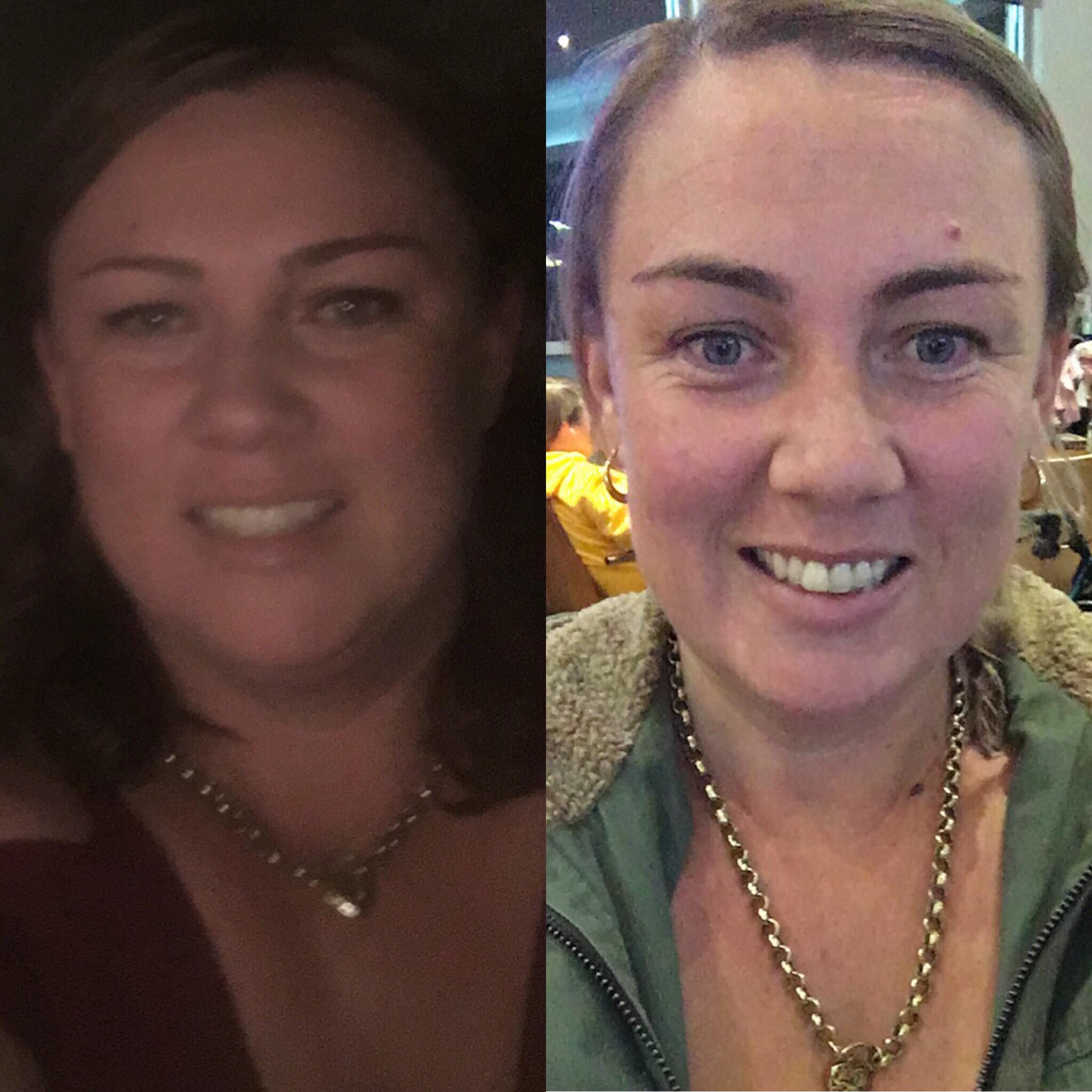 Paula's 2 months post op gastric sleeve surgery - lost 22 kgs