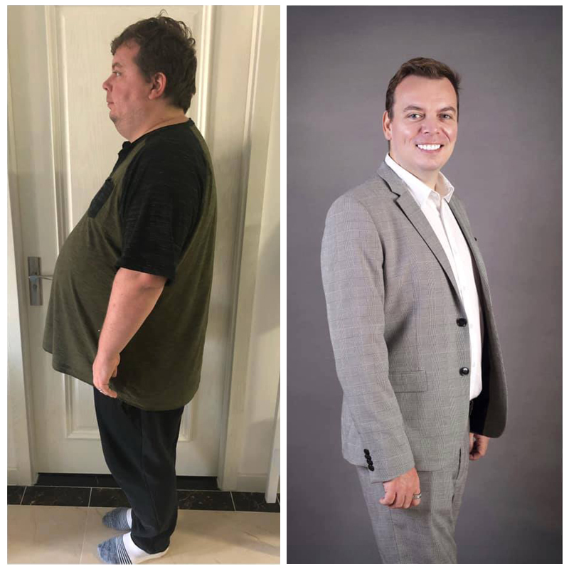 Shaun_Before and after gastric sleeve
