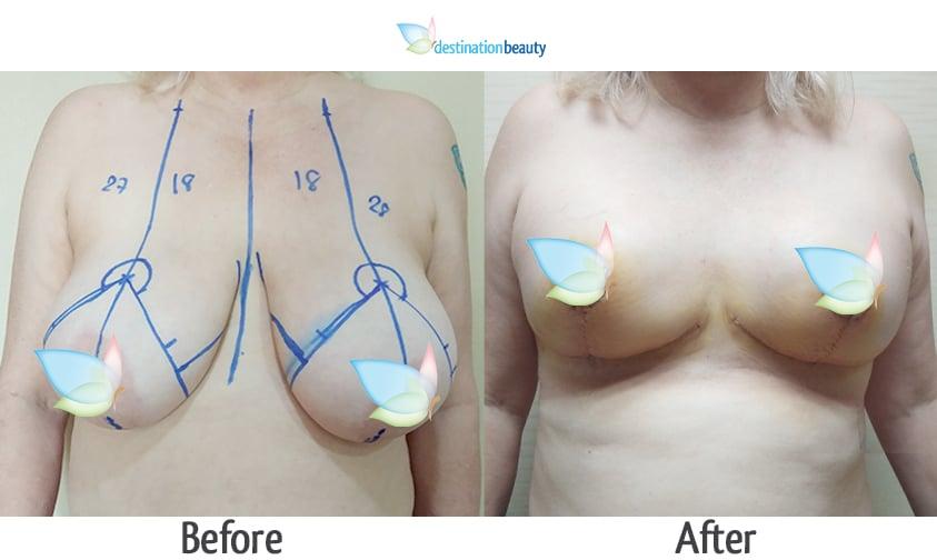 Sue breast reduction