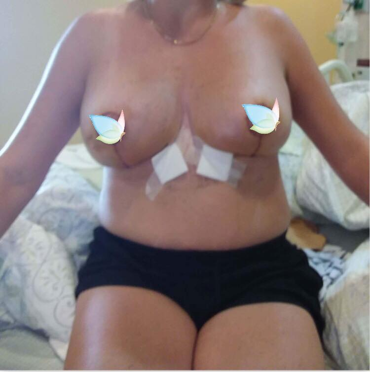 after picture of breast reduction with implant in bangkok
