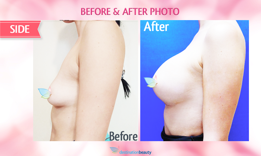 alyssa-before-and-after-breast-augmentation 1
