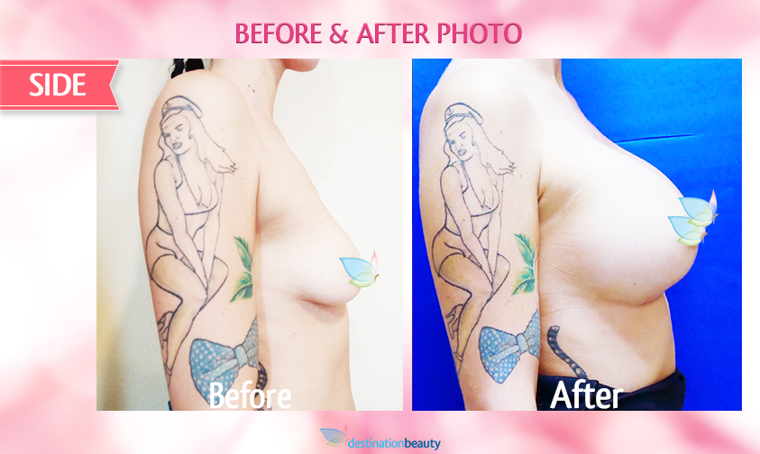 alyssa-before-and-after-breast-augmentation 2