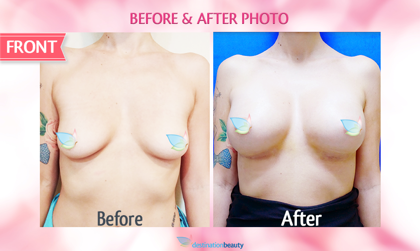 alyssa-before-and-after-breast-augmentation 3