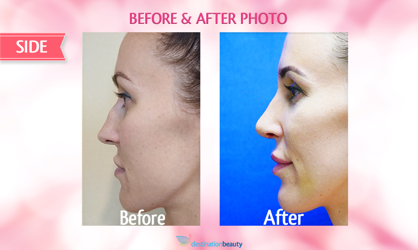 alyssa-before-and-after-nose-surgery 1