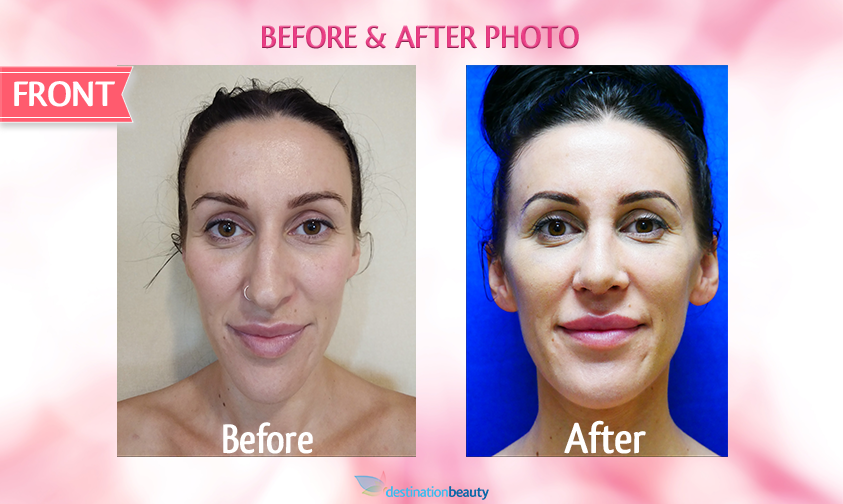 alyssa-before-and-after-nose-surgery 2