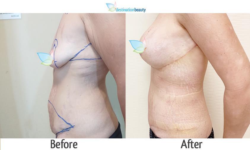 arm llift, breast lift, breast implants, extended tummy tuck, mons lift 3