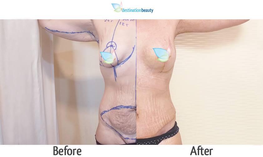 arm llift, breast lift, breast implants, extended tummy tuck, mons lift