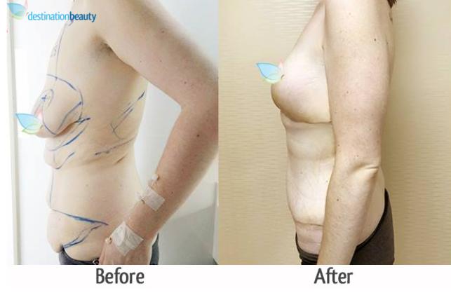 ashley skin removal thailand
