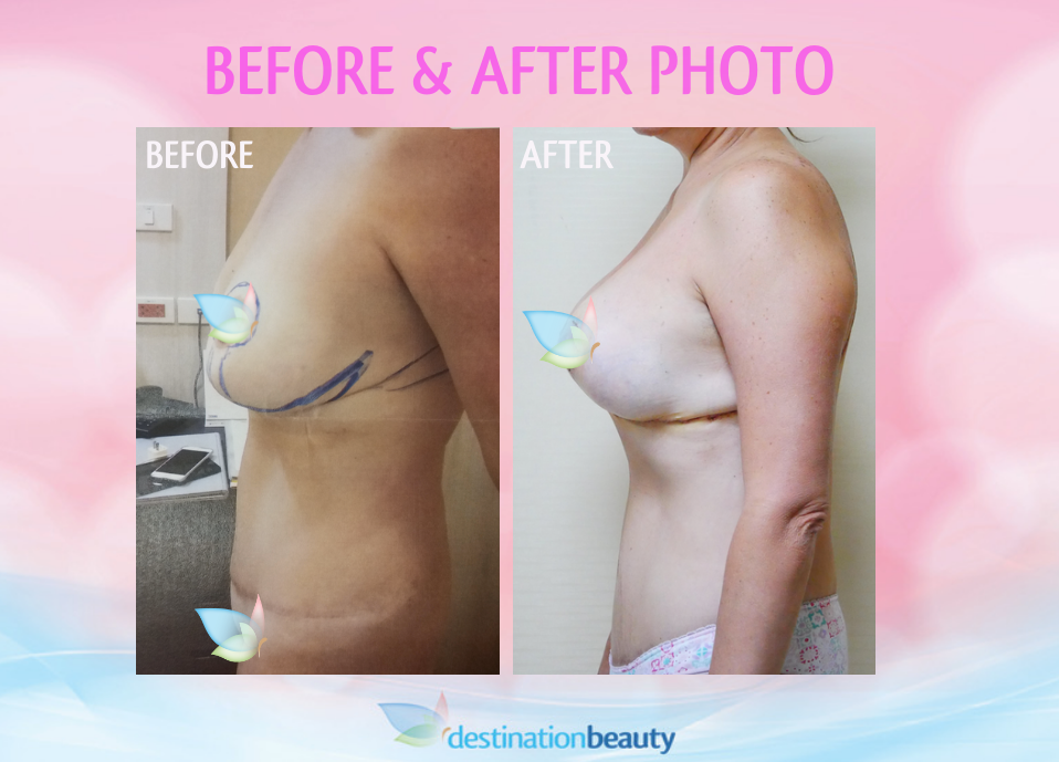 before and after breast reduction and lift with implant in Bangkok (3)
