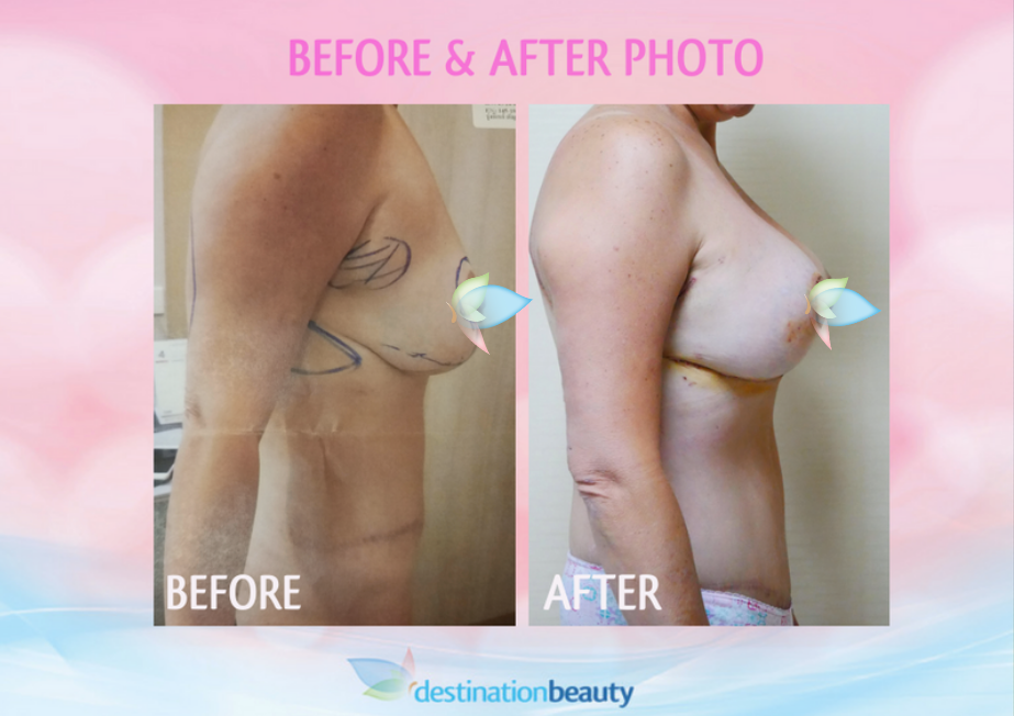 before and after breast reduction and lift with implant in Bangkok