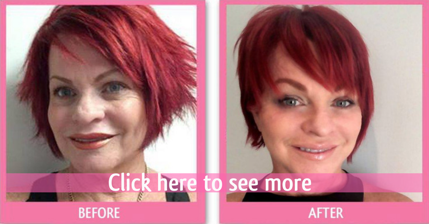 before and after face lift thailand