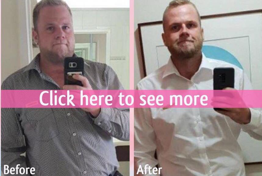 before and after gastric sleeve surgery bangkok