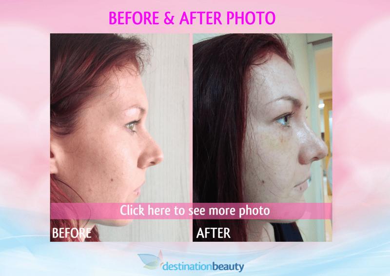 before and after nose job bangkok