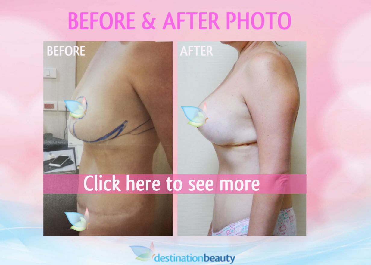 before and after pictures of breast reduction with implants bangkok-1