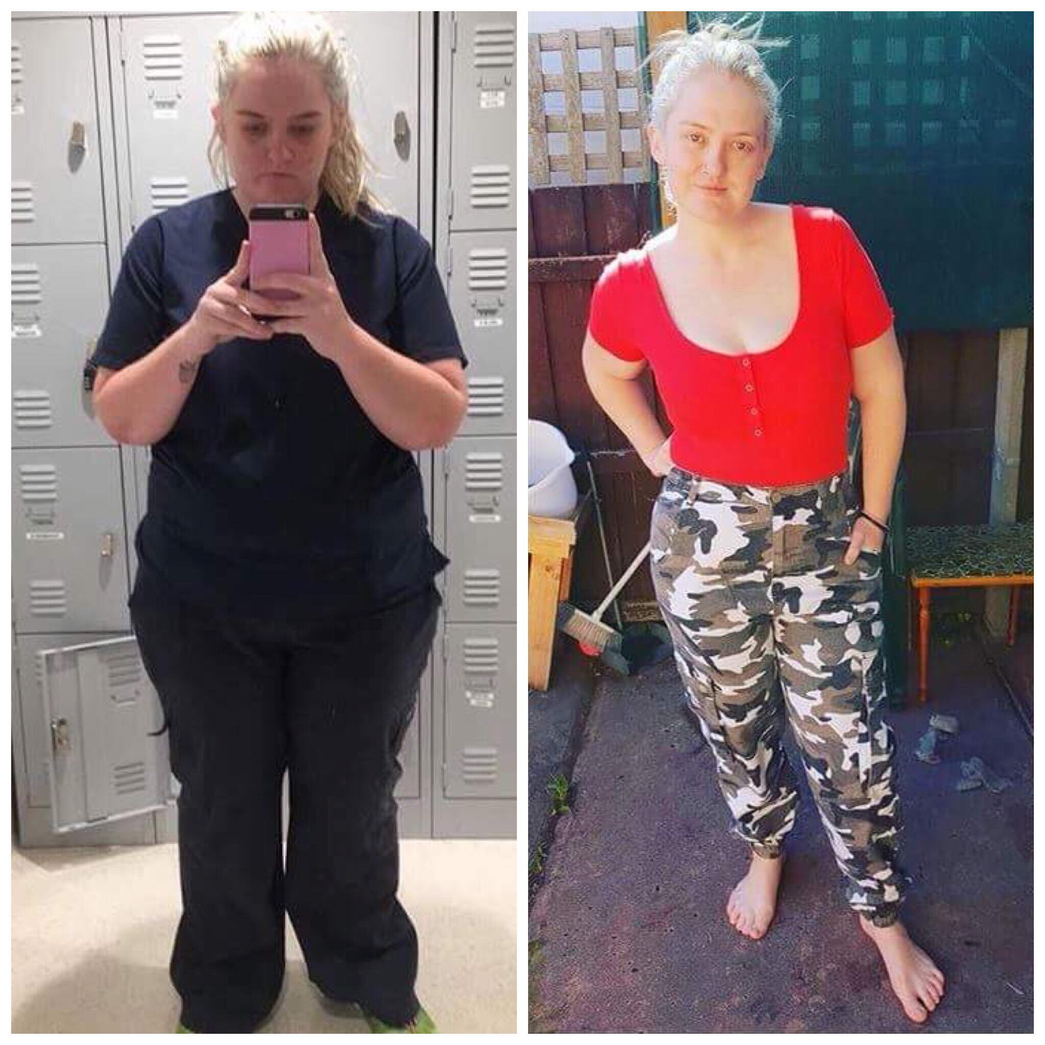 before and after pictures of weight loss surgery thailand