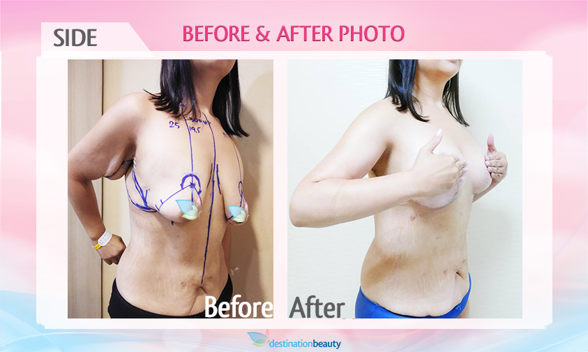 before-and-after-breast-augementation-with-lift-.png