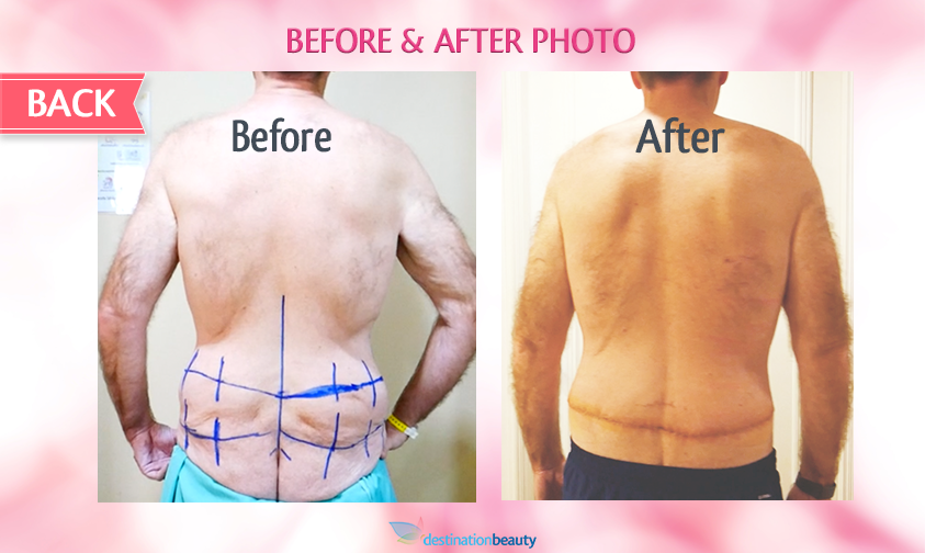 belt lipectomy bangkok-before and after-back view