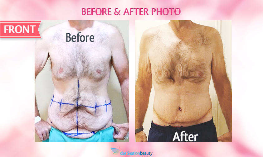 belt lipectomy bangkok-before and after-front view