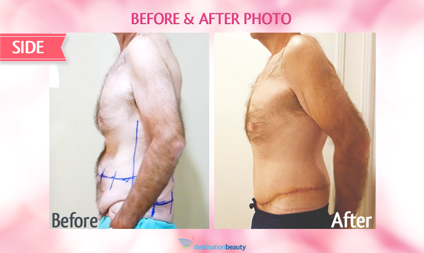belt lipectomy bangkok-before and after-side view-left