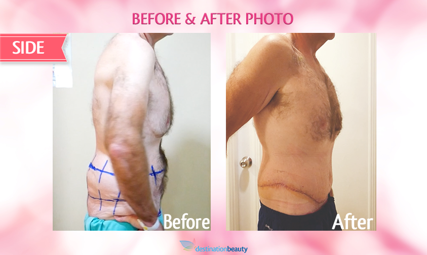 belt lipectomy bangkok-before and after-side view-right