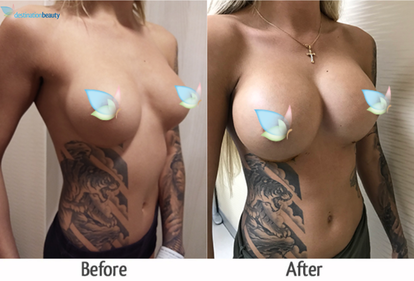 breast augmentation 600 cc thailand