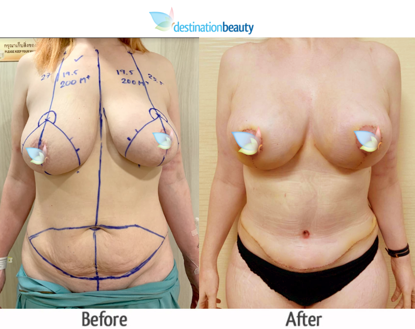 breast augmentation with lift and extended tummy tuck (2)