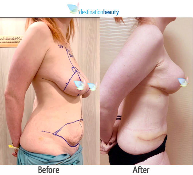 breast augmentation with lift and extended tummy tuck (3)