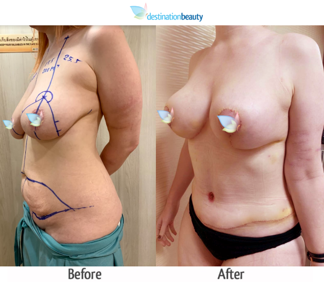 breast augmentation with lift and extended tummy tuck (4)