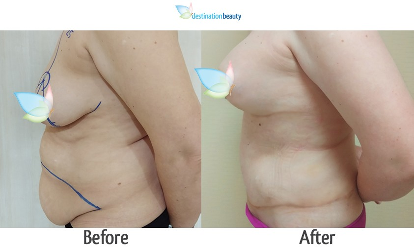 breast augmentation with lift and extended tummy tuck-1