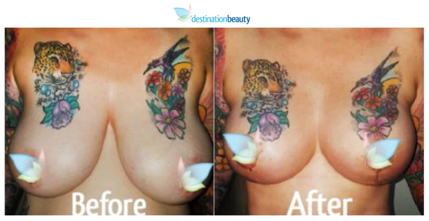 breast augmentation with lift and tummy tuck thailand 2