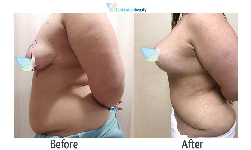 breast augmentation with lift and tummy tuck thailand before and after pictures